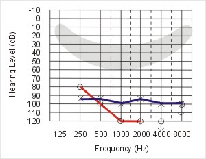 Profound hearing loss audiogram